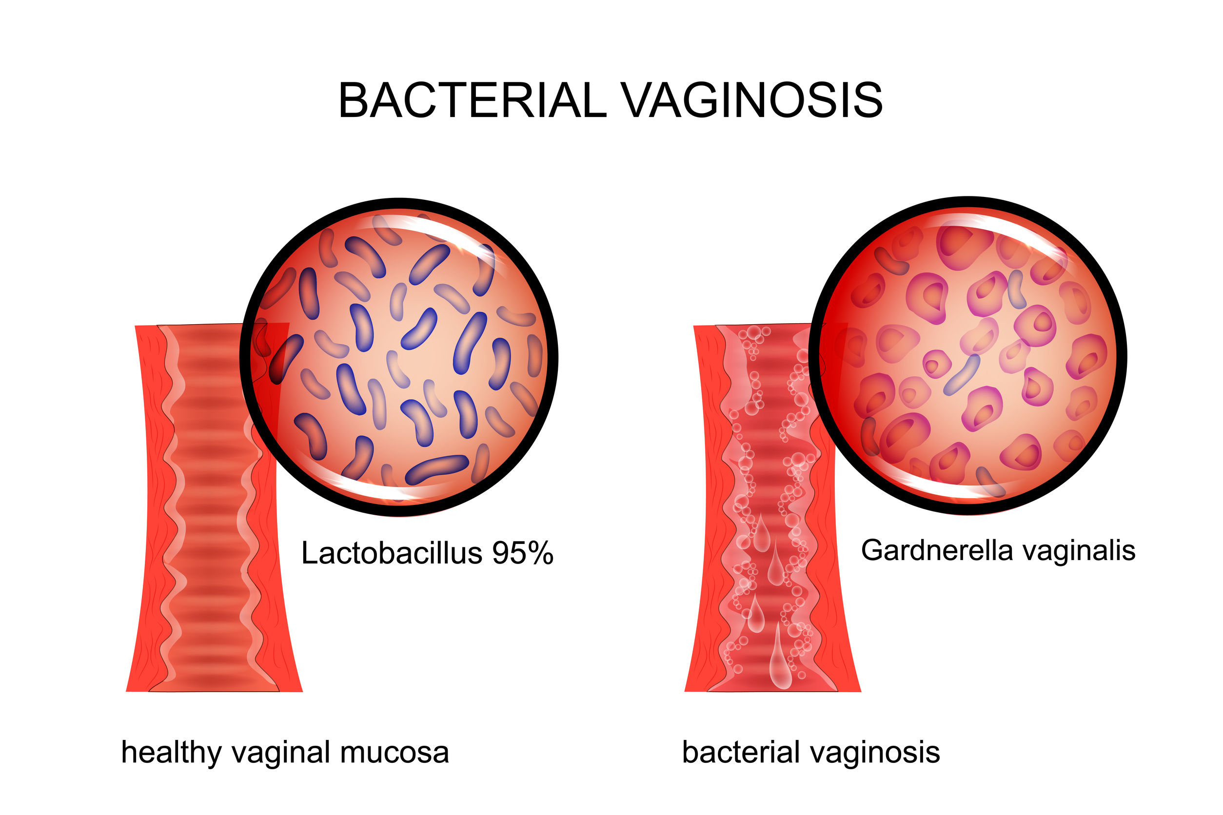 Vaginal Infections