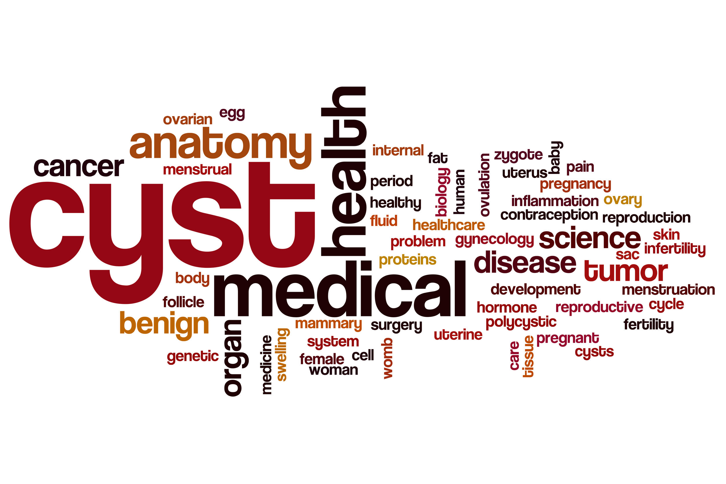 Ovarian Cysts image