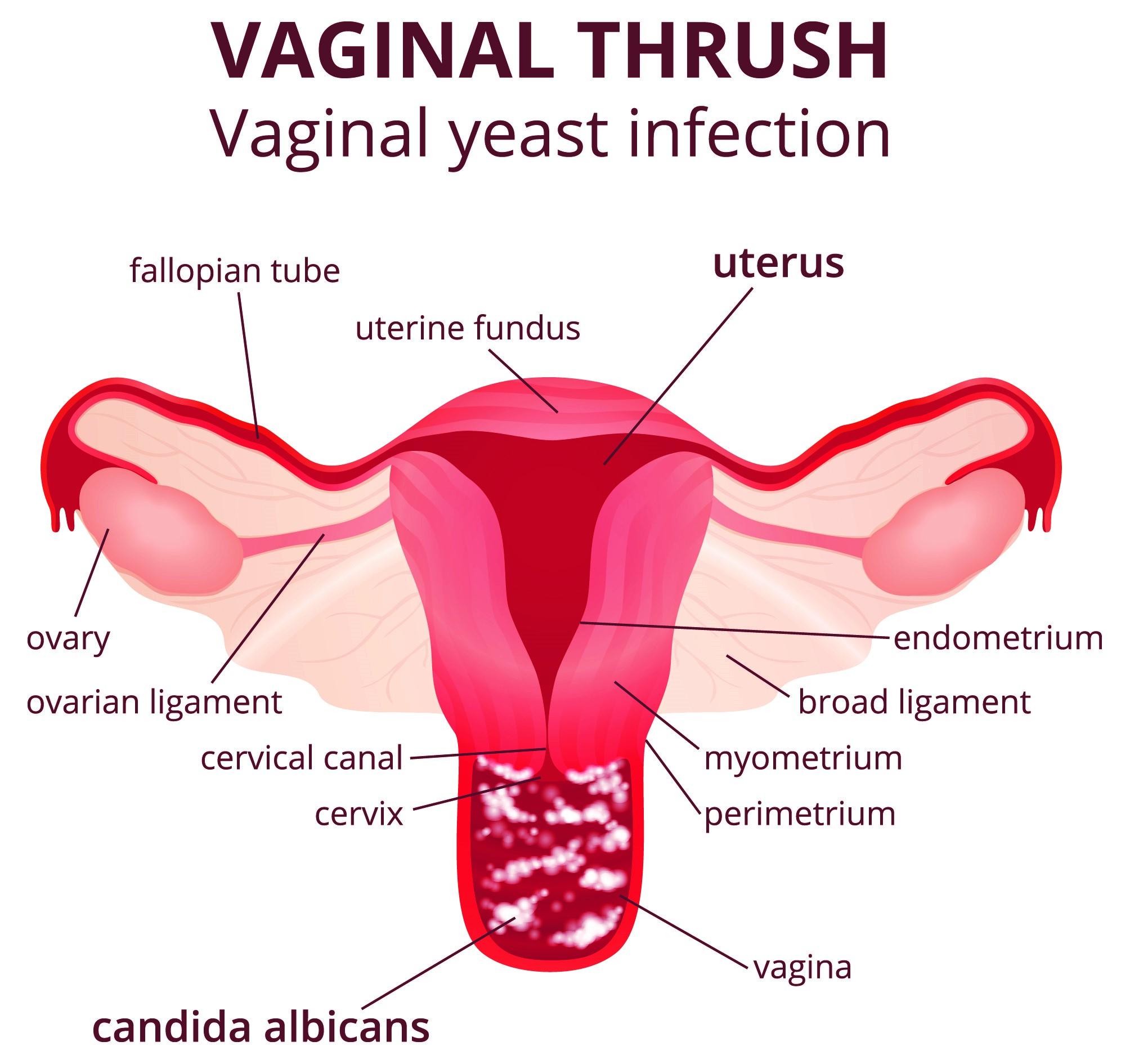 Thrush image